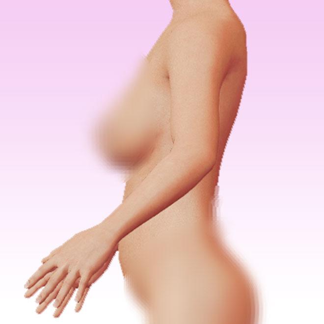 brazo lateral izquierda
