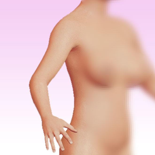 brazo oblicua derecha