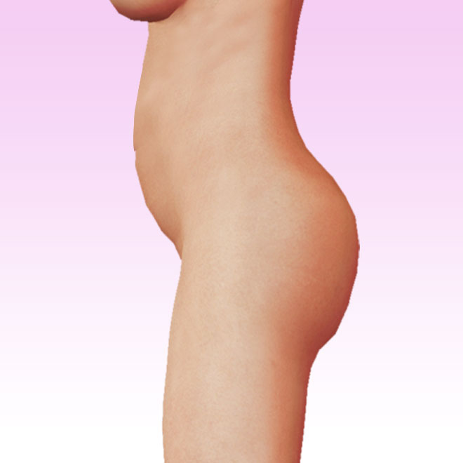 cuerpo lateral izquierda