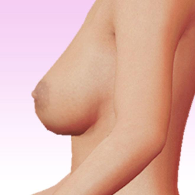 pecho lateral izquierda