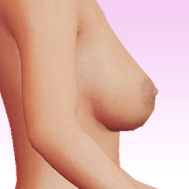 pecho lateral derecha