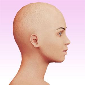 cara lateral derecha