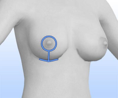 scars breast revision - III