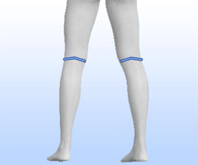 scars calf implants