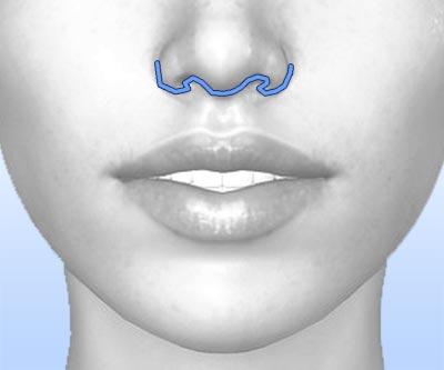 scars lip lift - I