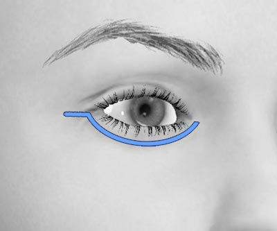 scars lower eye bags blepharoplasty - I