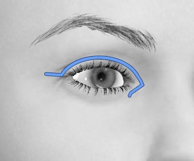 scars upper asian blepharoplasty - I