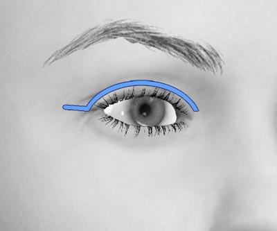 scars upper eye lift blepharoplasty - I